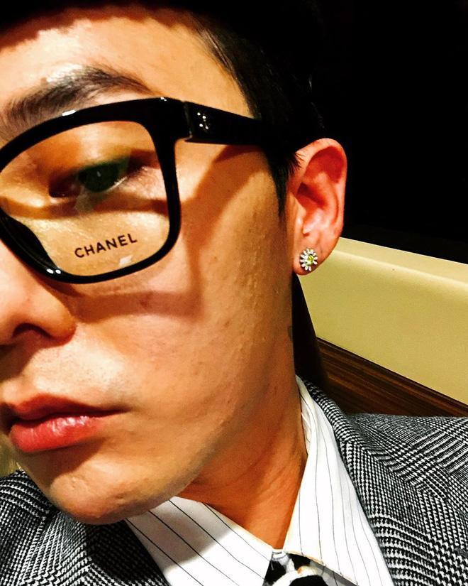 Gu thời trang thì không chê vào đâu được nhưng G-Dragon phải chăng nên xem lại làn da sần sùi của mình?-3