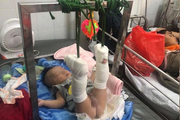 Thông tin mới nhất về sức khỏe của bé 4 tháng tuổi bị bố đánh gãy chân, xuất huyết não-1