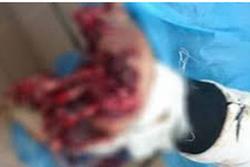 Thanh niên 19 tuổi phải cắt bỏ 3 ngón tay vì vừa sạc điện thoại vừa… chat