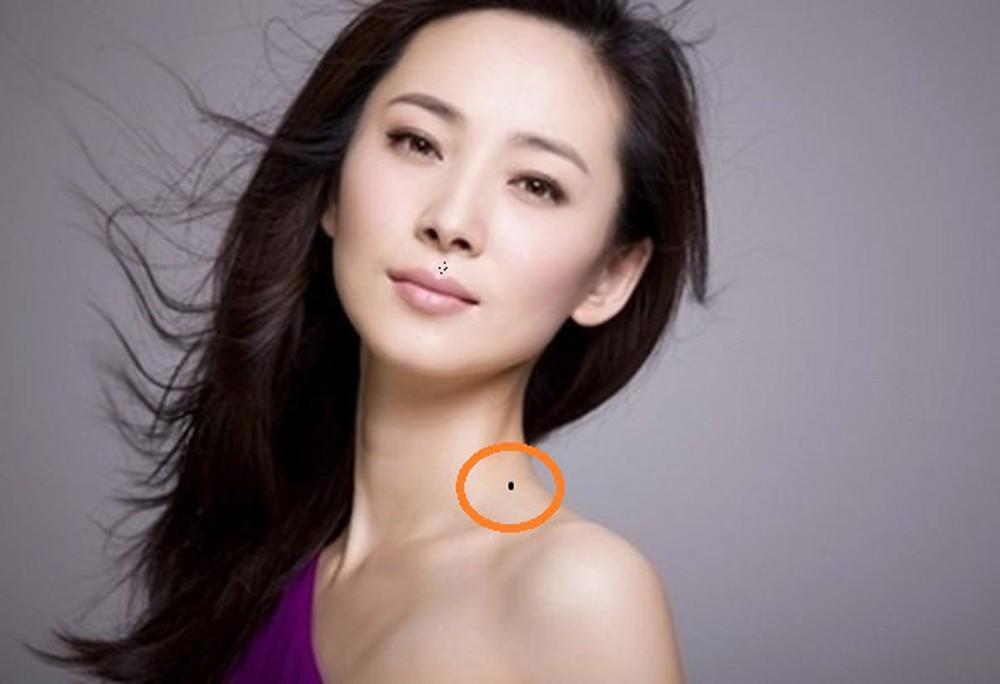 4 vị trí nốt ruồi được cho là tán lộc ở phụ nữ, cần phải xem xét việc tẩy xóa để không mang xui xẻo về-2