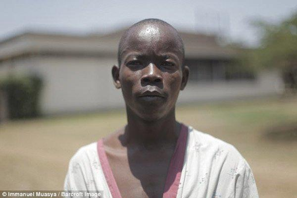 Cuộc sống sau phẫu thuật của chàng trai có cậu nhỏ lớn gấp 20 lần người thường-2