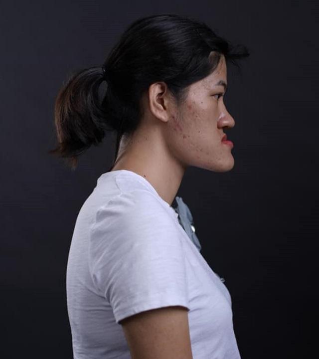 Cô gái Hà Nội tự nhận có gương mặt quỷ biến hóa thành hotgirl xinh ngỡ ngàng-1