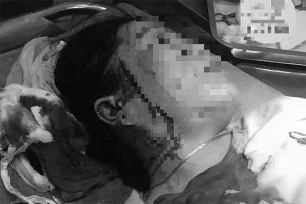 Bình Thuận: Hẹn đánh ghen, một phụ nữ bị đâm rách mặt-1