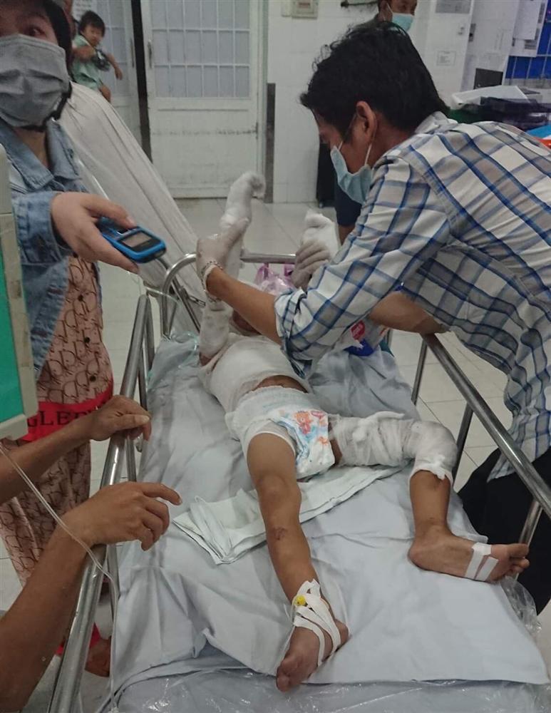 Phẫn nộ: Cháu bé 6 tuổi ở Vũng Tàu nghi bị dì ruột tẩm xăng thiêu sống chỉ vì bố mắc nợ 3 triệu-2