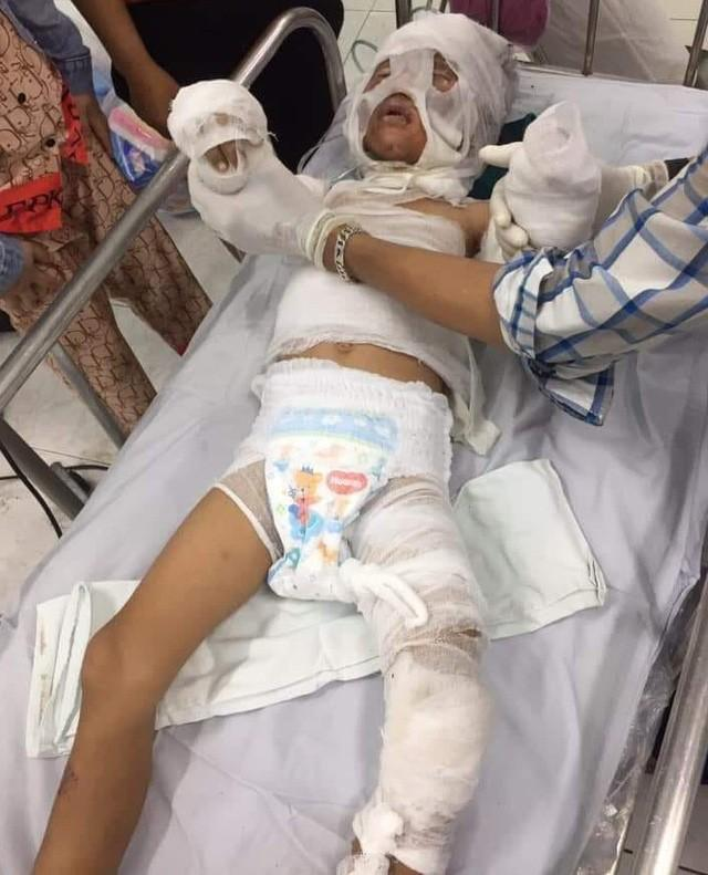 Bố bé 6 tuổi bị dì ruột tẩm xăng đốt: Cháu rất quý dì Phượng, suốt ngày mẹ Phượng, mẹ Phượng-1