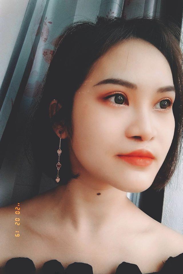 9X Phú Thọ như được hồi sinh sau 3 ca đại phẫu gương mặt-2