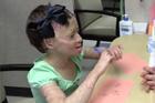 Hạnh phúc khi được cầm bút của bé gái Syria sau 3 năm bị trúng bom