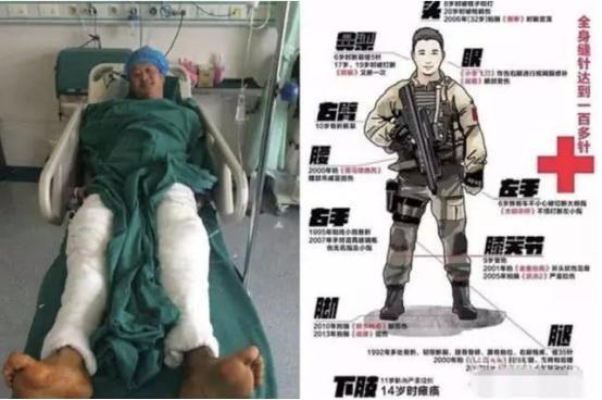 Nỗi khổ khi diễn viên Hoa Ngữ quay phim gặp tai nạn: Có đau đớn cách mấy cũng không được bày tỏ!-5