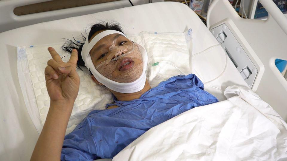 Phiên bản lỗi của Đức Phúc gây bất ngờ với diện mạo điển trai sau khi phẫu thuật thẩm mỹ-3