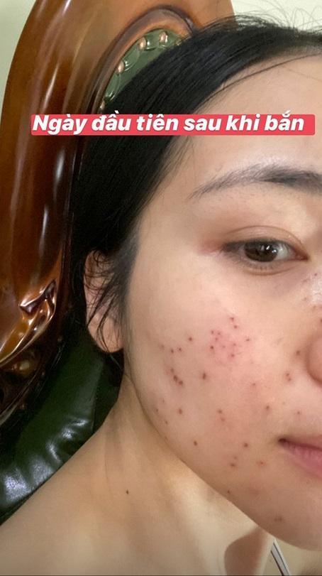 Không ngại xấu, Hòa Minzy công khai gương mặt sau 11 ngày bắn laser mụn thịt-3