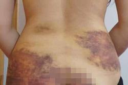 Diễn biến mới vụ cô gái 27 tuổi bị chồng bạo hành, ép quan hệ ở Tây Ninh