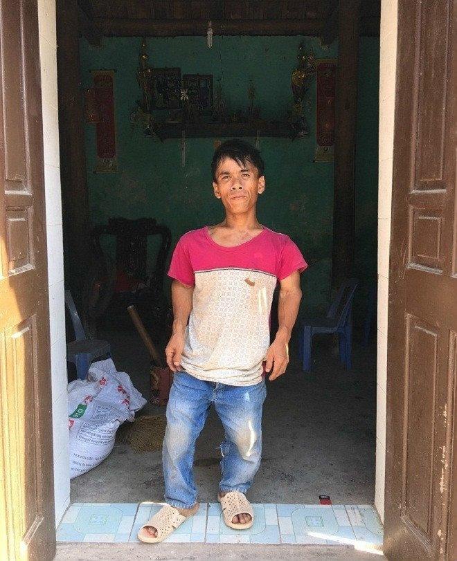 Gia đình 3 người lùn ở Hưng Yên: Ngày chỉ ăn một bữa, toàn uống nước lã và cháo loãng-2
