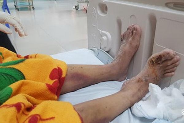 Nữ tiếp viên tố bị chủ quán cà phê ở Đồng Nai chích điện, đánh gãy xương sườn,nứt sọ...-3