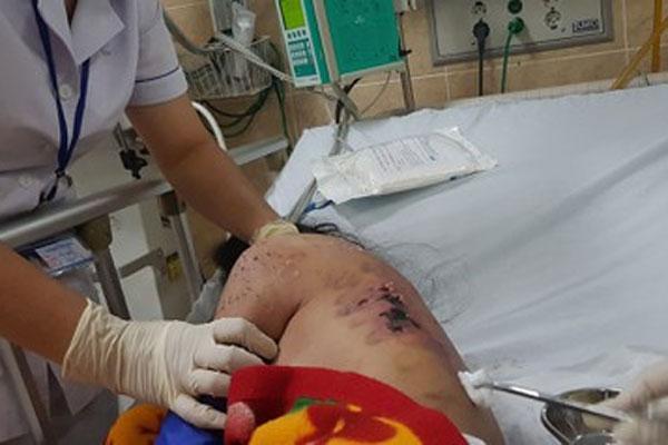 Nữ tiếp viên tố bị chủ quán cà phê ở Đồng Nai chích điện, đánh gãy xương sườn,nứt sọ...-2