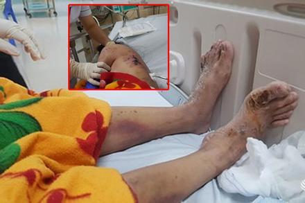 Nữ tiếp viên tố bị chủ quán cà phê ở Đồng Nai chích điện, đánh gãy xương sườn,nứt sọ...