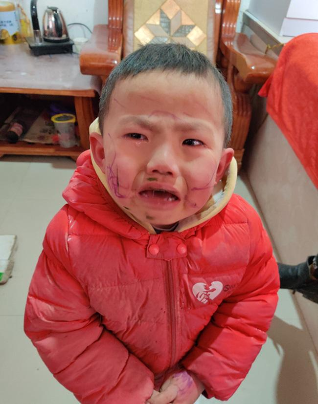 Nghịch ngợm dùng bút vẽ lên mặt, cậu bé khóc thét khi soi gương nhìn thành quả-2