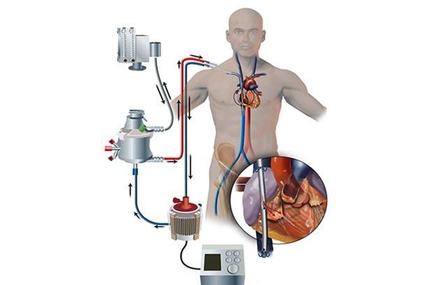 Bệnh nhân số 19 dương tính Covid-19 sức khỏe xấu, phải can thiệp tim phổi nhân tạo-2