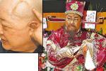 Sau 3 lần suýt chết, phải mổ khối u não 10 cm, sức khỏe của Bao Thanh Thiên hiện ra sao?