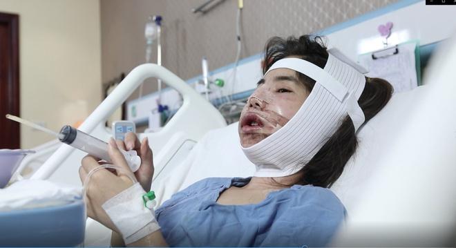 Cô gái Phú Thọ mong tìm được bạn đời sau hành trình phẫu thuật thẩm mỹ-2