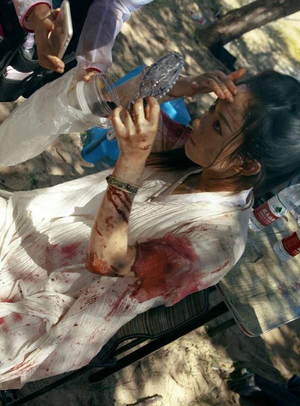 Tai nạn phim trường của Triệu Lệ Dĩnh: Suýt chết đuối cũng chẳng bằng việc sống với cục u suốt đời do ngã ngựa-6