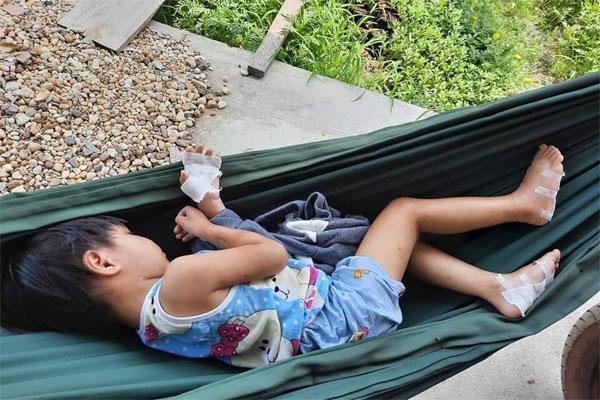 Điều tra vụ cha dượng nghi bạo hành, dí bé 4 tuổi vào pô xe máy ở Tây Ninh-1