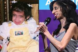 Sau 31 năm, phép màu đã đến với cô gái từng bị gọi 'xấu xí nhất thế giới'