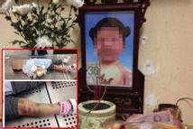Nghi án bé gái 3 tuổi ở Hà Nội chết thương tâm do bị mẹ đẻ và bố dượng bạo hành như thời trung cổ