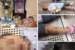Vụ bé gái tử vong nghi do bị mẹ đẻ và bố dượng bạo hành: Bắt khẩn cấp cặp vợ chồng thủ ác