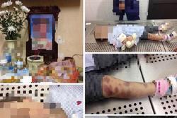 Chủ tịch Hà Nội yêu cầu điều tra vụ trẻ tử vong nghi do bạo hành