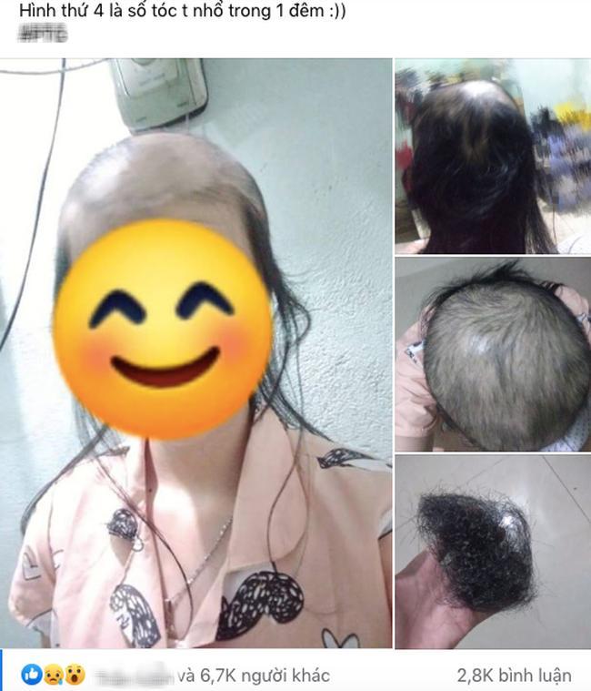 Cô gái trẻ kể chuyện nhổ tóc mỗi khi stress, nhìn ảnh đầu ơi ở lại tóc đi nhé ai cũng hết hồn-1