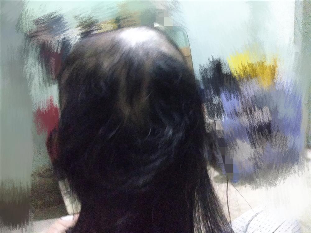 Cô gái trẻ kể chuyện nhổ tóc mỗi khi stress, nhìn ảnh đầu ơi ở lại tóc đi nhé ai cũng hết hồn-4