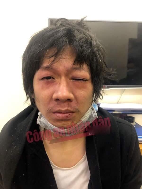 Mẹ ruột và bố dượng khai đã bạo hành bé gái 3 tuổi suốt 1 tháng trước khi tử vong ở Hà Nội-2
