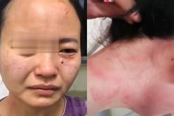 Nữ y tá bị cắn rách mặt khi ngăn cản bệnh nhân nhiễm COVID-19 trốn cách ly