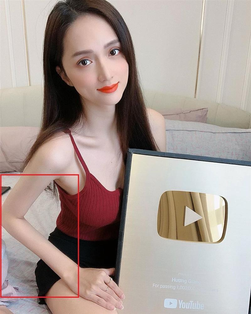 Mải khoe thành tích, hoa hậu Hương Giang nào hay lộ khuyết điểm không thể phẫu thuật-2