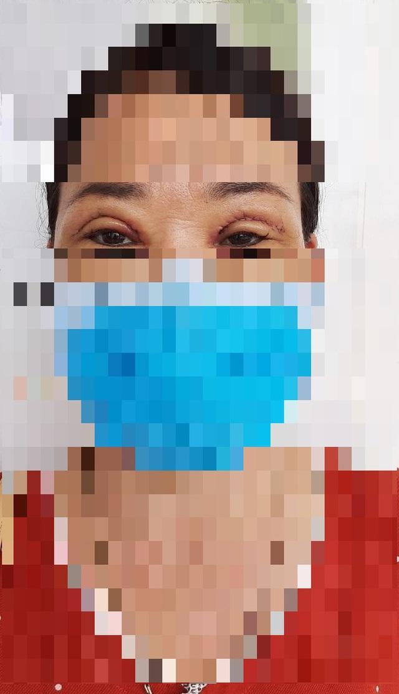 Bỏ quên kim khâu trong mí mắt bệnh nhân gần 2 năm-3
