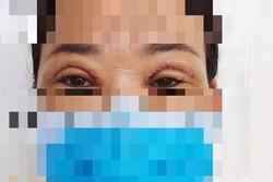 'Bỏ quên' kim khâu trong mí mắt bệnh nhân gần 2 năm
