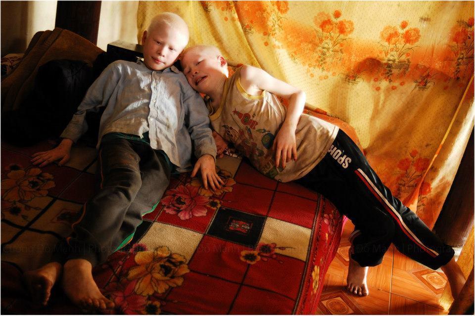 Cuộc sống thay đổi khó tin của cặp song sinh bạch tạng ở Hà Tĩnh sau 7 năm nổi tiếng-1