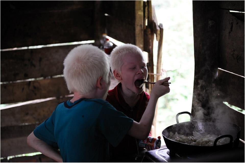Cuộc sống thay đổi khó tin của cặp song sinh bạch tạng ở Hà Tĩnh sau 7 năm nổi tiếng-2