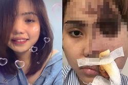 Bất ngờ diện mạo cô gái Đà Nẵng bị chồng sắp cưới tạt axit biến dạng cách đây 1 năm