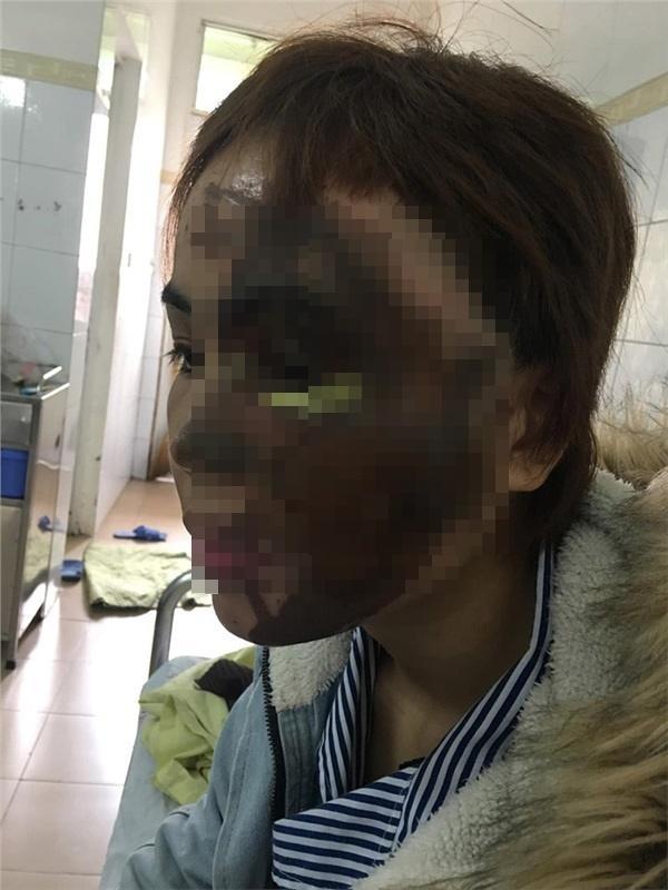 Bất ngờ diện mạo cô gái Đà Nẵng bị chồng sắp cưới tạt axit biến dạng cách đây 1 năm-3