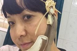 MC Thảo Vân quên cả hẹn với người thân do di chứng của bệnh teo thùy não trái