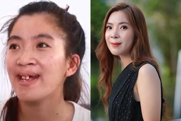 Cô gái Đồng Nai đổi đời sau 24 năm bị miệt thị người không môi-1