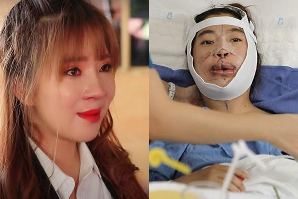Cô gái Đồng Nai đổi đời sau 24 năm bị miệt thị người không môi-2