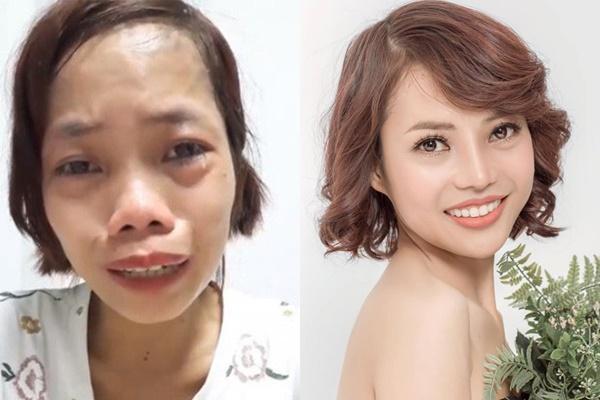 Cô gái Đồng Nai đổi đời sau 24 năm bị miệt thị người không môi-4