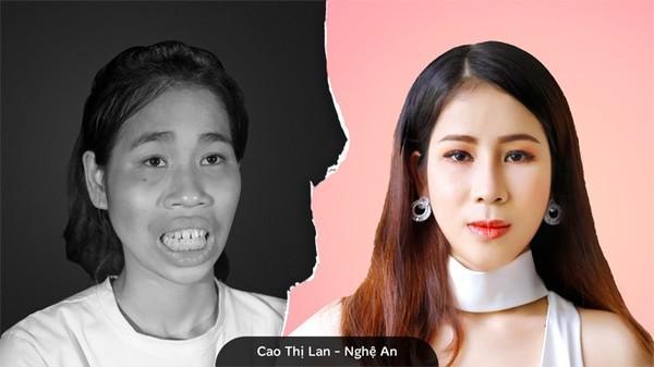 Cô gái Đồng Nai đổi đời sau 24 năm bị miệt thị người không môi-5