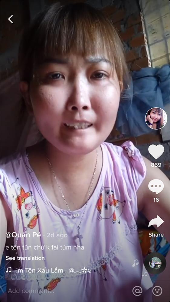 Cô gái Bến Tre mắc bệnh xơ cứng bì quay clip tiktok hút 2 triệu view: Gia cảnh khó khăn, bị trêu chọc vì gương mặt kì lạ-2