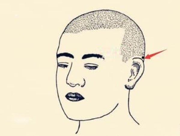 Nốt ruồi tài lộc là gì? Ở những vị trí nào trên cơ thể của bạn có nốt ruồi tài lộc?-2