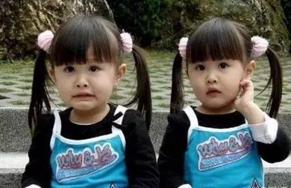 Cặp song sinh từng gây sốt vì xinh đẹp nhất châu Á, sau 17 năm giờ ra sao?-1