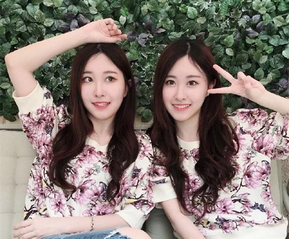 Cặp song sinh từng gây sốt vì xinh đẹp nhất châu Á, sau 17 năm giờ ra sao?-2