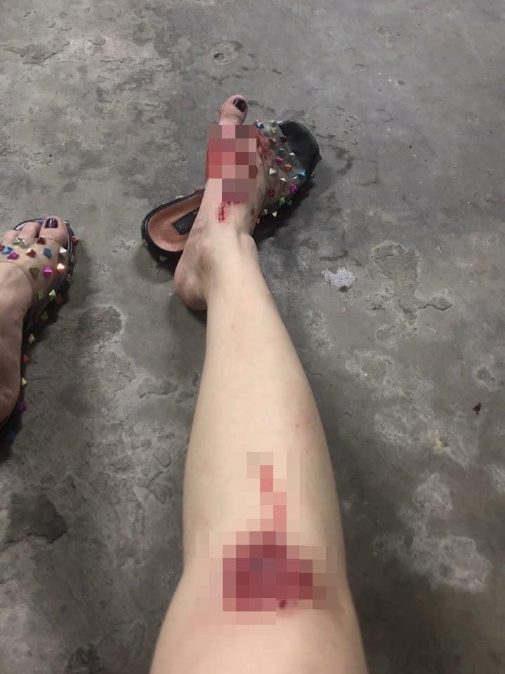 Người mẫu Cao Thùy Linh kể chuyện bị sàm sỡ vùng nhạy cảm khi đang chờ đèn đỏ-3